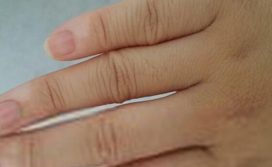 手指上有白癜风怎么办呢